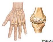 Articole Reumatologie